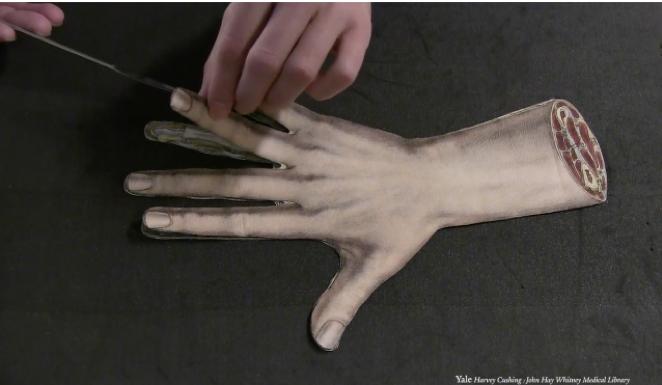 Image of flap anatomy hand