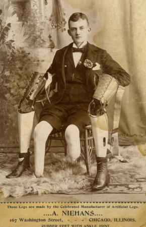 A Victorian-era male posing with two prosthetic legs